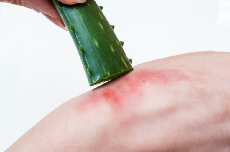 Aloe Vera on Cut